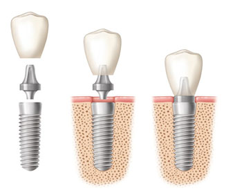 conventional-implant-with-crown