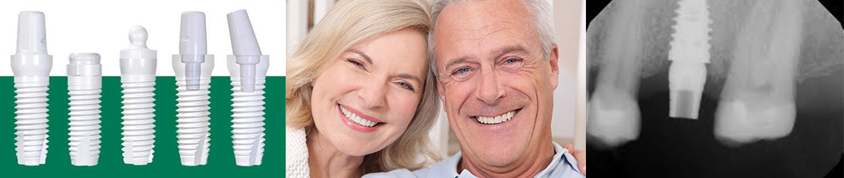 Dental Implants Westerville, Ohio